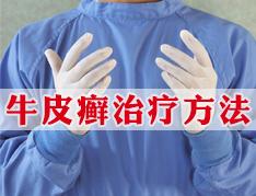 西安京科中医治疗牛皮癣怎么样
