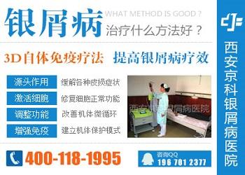 西安治疗银屑病的医院