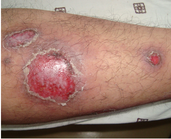 红皮型银屑病的临床症状表现有哪些